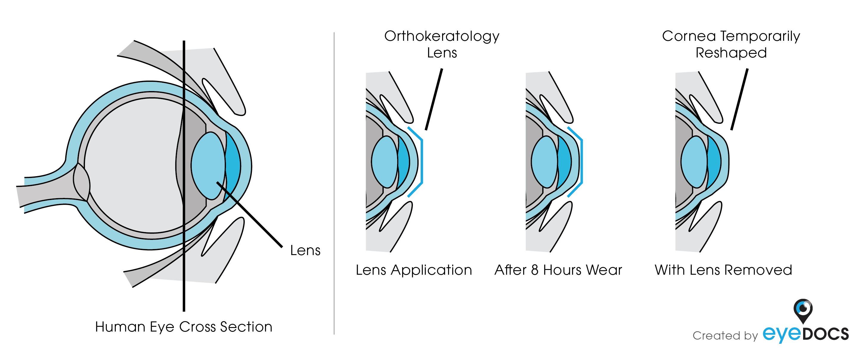 Modello schematico di funzionamento del trattamento di Ortocheratologia