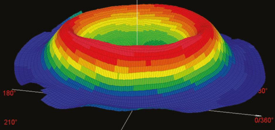 Topografia Corneale a Seguito di trattamento di Ortocheratologia