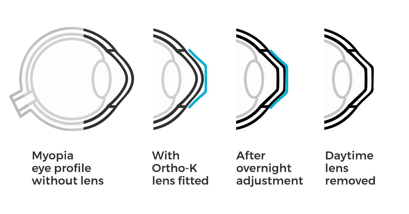 Simulazione principio di funzionamento di trattamento ortocheratologia